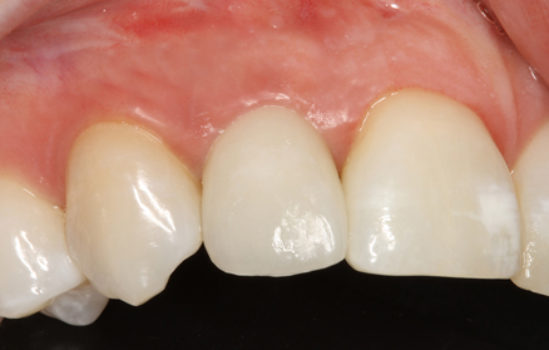 Figure 2b: Front Tooth Replaced with Implant