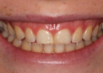 Figure 1: Gummy Smile