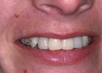Figure 2: Low Lip Line
