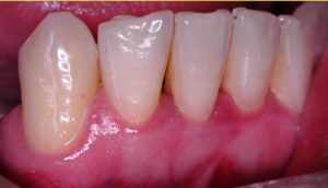 gum disease, gum treatments, implant, periodontist, dental specialist, oral cosmetic surgery, dental surgery, Gingivitus